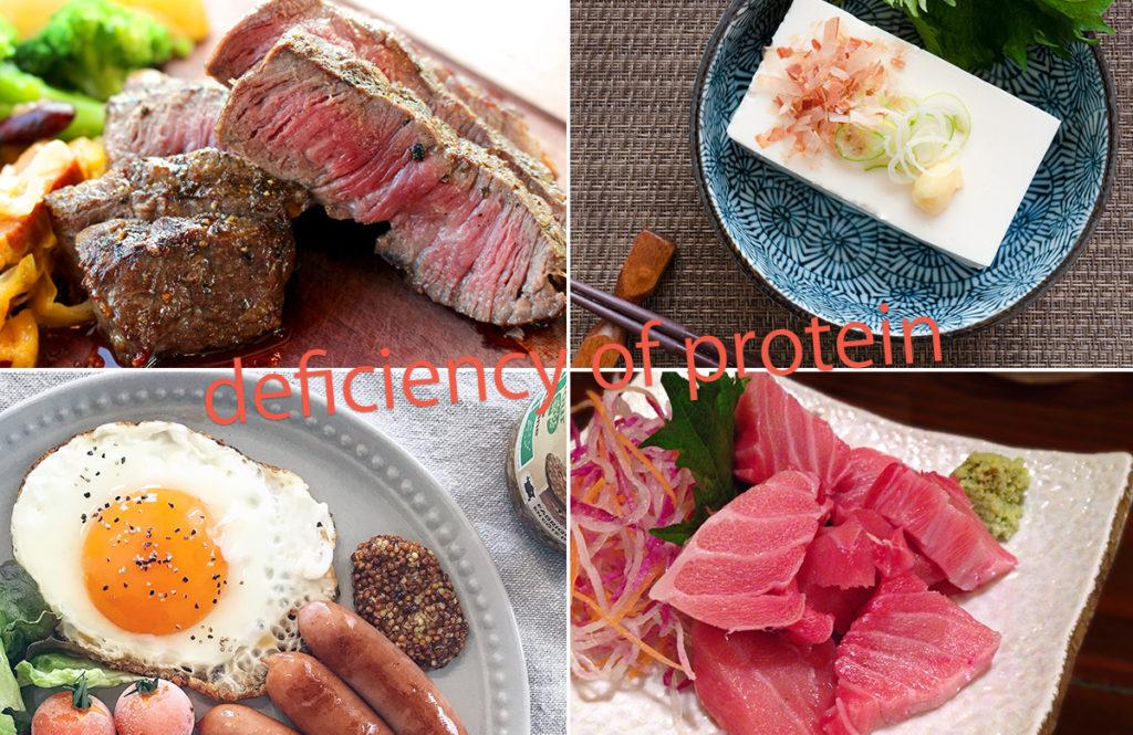 免疫力にも影響が⁉ 日本人は「タンパク質」が足りていないって本当?